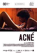 Acné (2007)