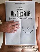 """Léčba den za dnem<span class=""""name-source"""">(festivalový název)</span> (2010)"""